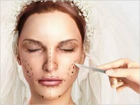 bridal surgery